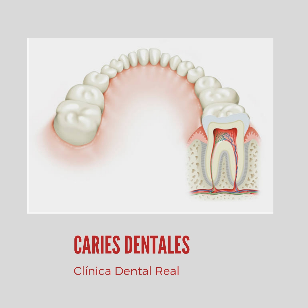 CARIES DENTAL- CLÍNICA REAL