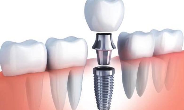 implantes dentales - clínica Torrejón de la Calzada